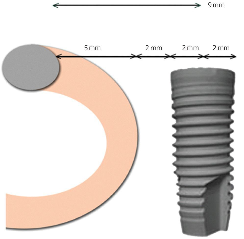 Diagram illustrating the placement of the inferior‐most point of the implant 9 mm anterior to the mental foramen.