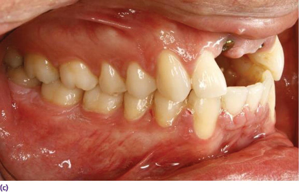 Photo displaying orthodontic intrusion of mandibular incisors to accommodate maxillary anterior restorative requirements and harmonious crown morphologies.