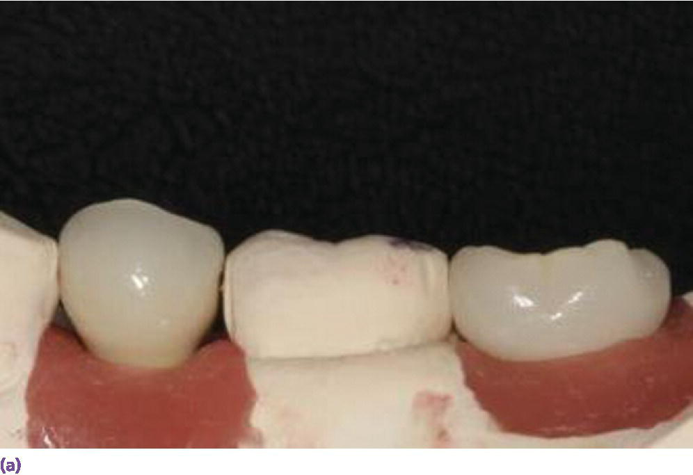 Photo displaying a side view representation for screw-retained restorations (top left) using the required minimum of 5 mm interocclusal space.