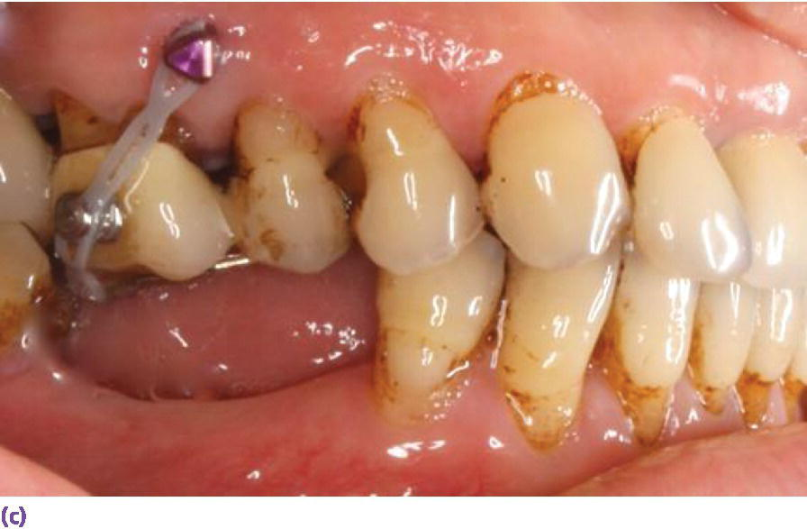 Photo displaying the use of buccal and palatal temporary anchorage devices (TADs) for intrusion with expected movement of 0.5–1 mm per month for adults.