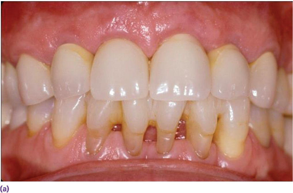 Photo of maxillary and mandibular teeth displaying  individual porcelain-fused-to-metal crowns on sites #7, 8, 9, and 10 implants.