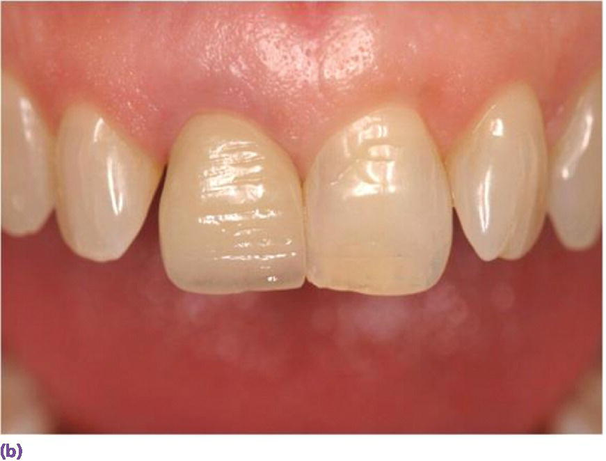 Photo of maxillary teeth displaying a single implant ceramic crown replacing left maxillary central incisor teeth.