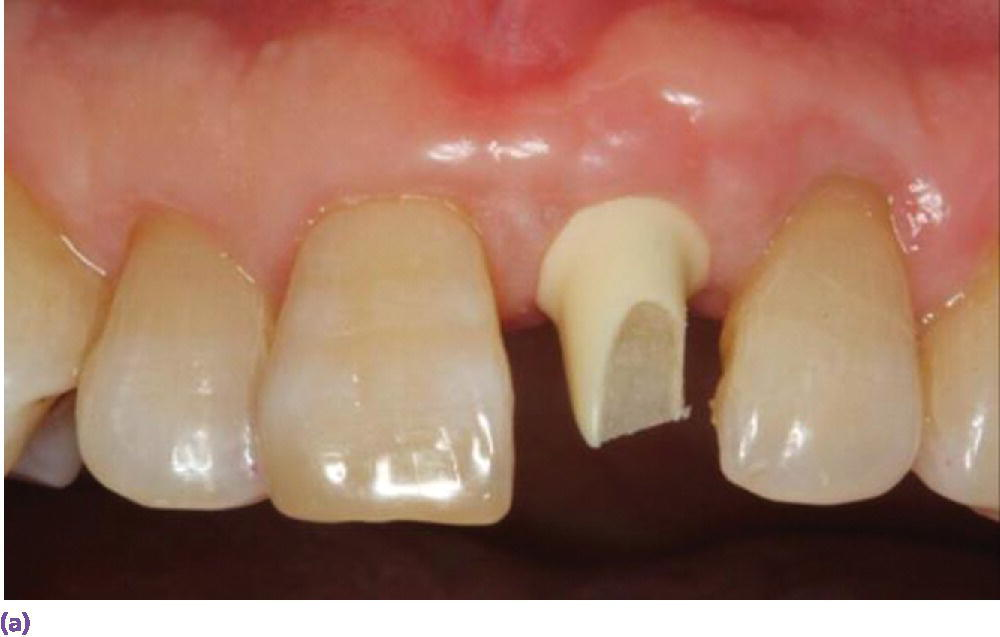 Photo of maxillary teeth depicting zirconia abutment positioned between right central incisor and canine teeth.