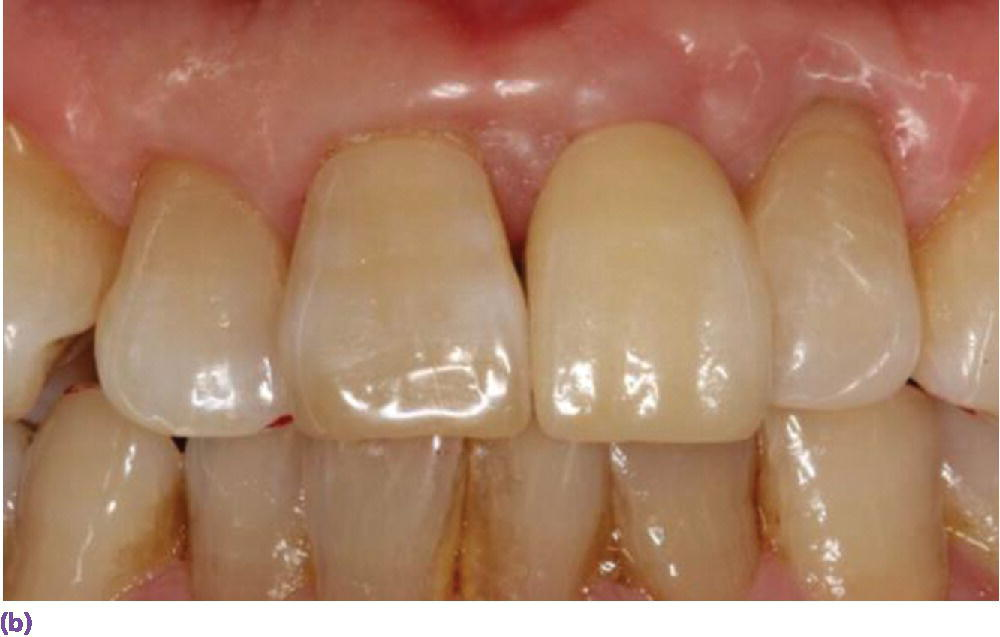 Photo of teeth from frontal view displaying  an all-ceramic crown restoration of the right maxillary lateral incisor.