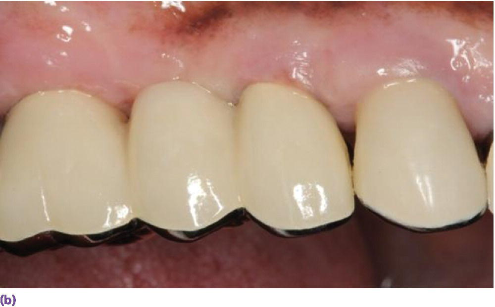 Photo of gum and four implants displaying a two-unit implant-supported fixed dental prosthesis with 2 porcelain-fused-to-metal crowned implants placed side by side.