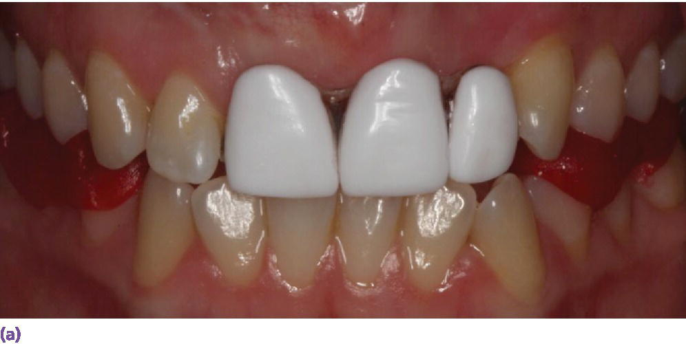 Photo of a gum and the maxillary (upper) and mandibular (lower) teeth displaying GC resin occlusal jig.