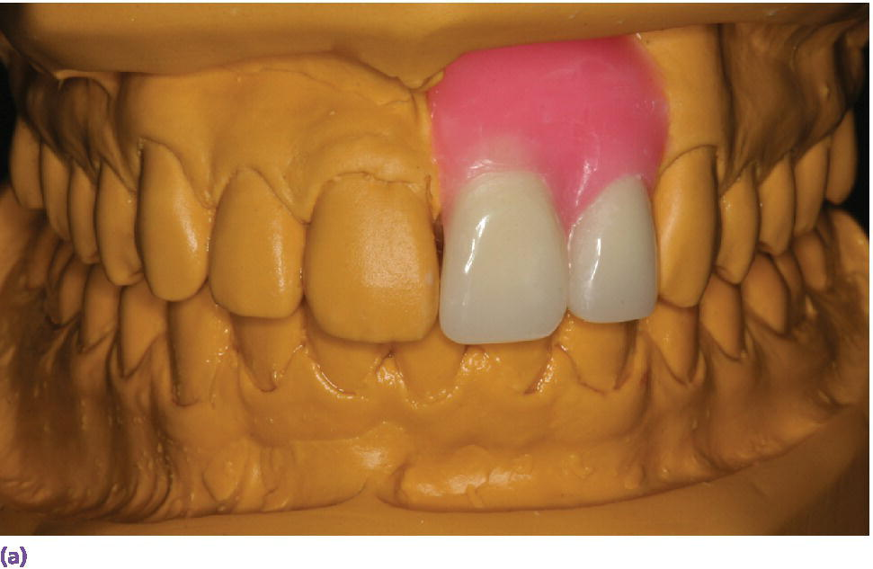 Photo of diagnostic wax-up for the proposed definitive restorations on maxillary left central and lateral incisors displaying the crown of teeth 9 and #10 waxed up.