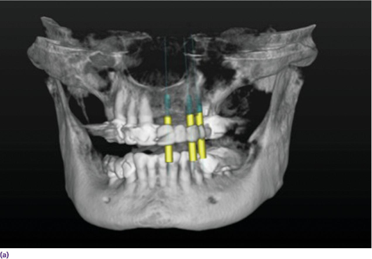 Screen capture displaying computer-generated 3-dimensional virtual implant planning.