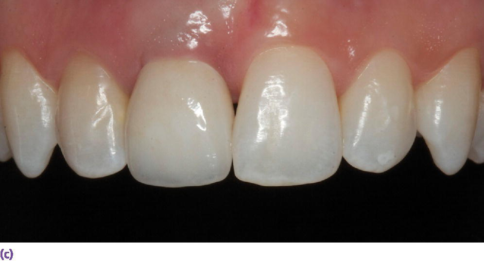 Photo of facial view of definitive implant restoration with asymmetrical gingival zenith resulting from inadequate implant placement.