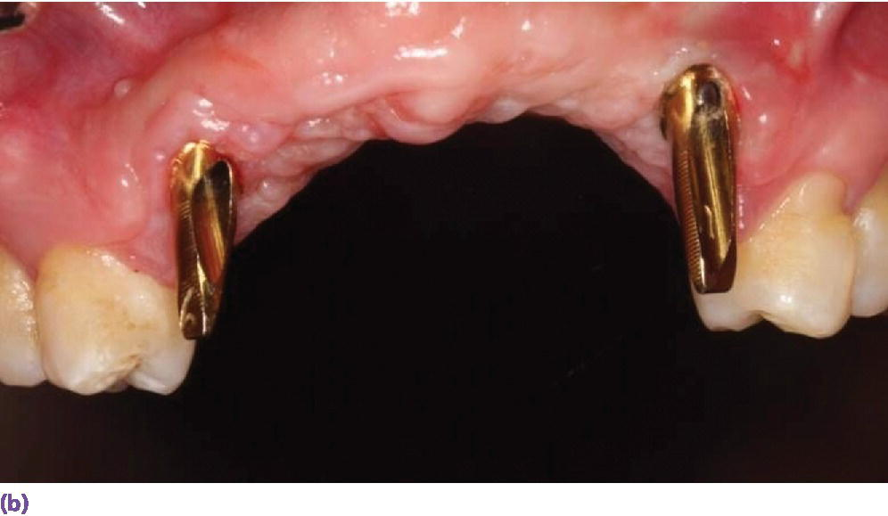 Photo displaying the definitive abutments with gold hue in place.