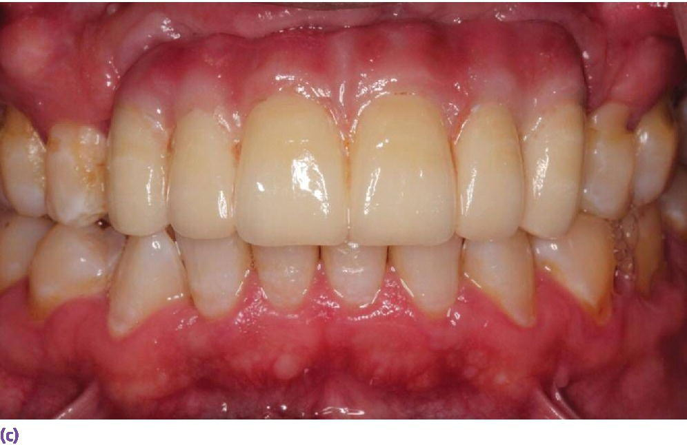 Photo displaying the use of pink ceramics to compensate for the lost tissues and provide an optimum esthetic result.