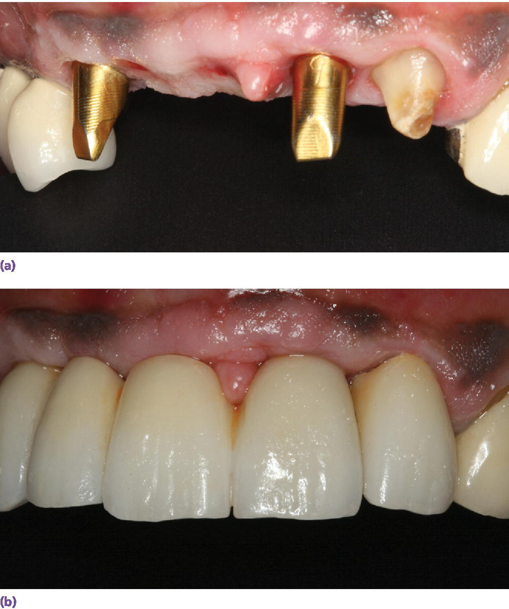 Photo displaying three?unit FDP adjacent to a natural tooth that needs a crown restoration. Custom abutments with gold hue are used to optimize esthetics.