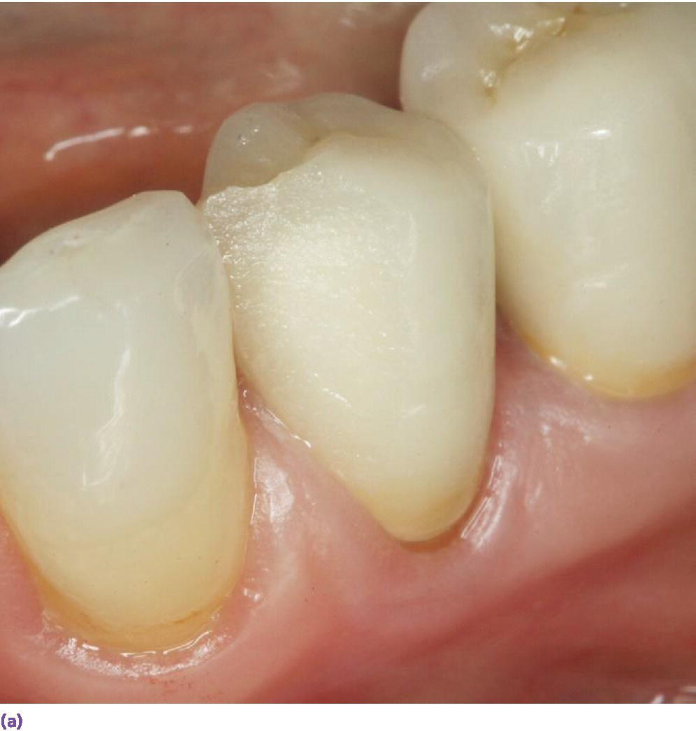 Photo displaying layered zirconia restoration with veneering ceramic fractured