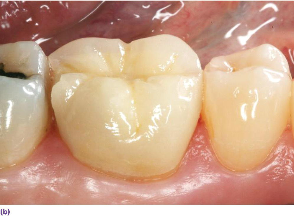 Photo of layered zirconia restoration with marginal ridge veneering ceramic fractured.