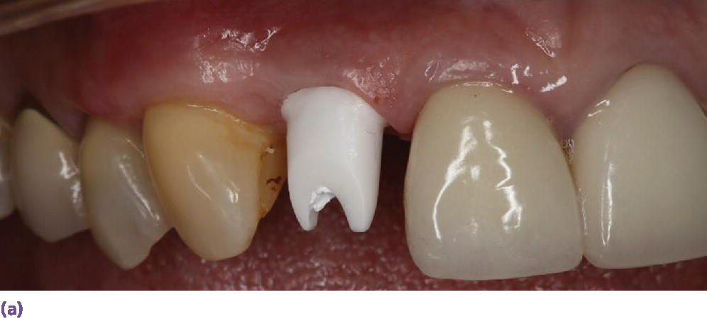 Photo displaying zirconia CAD/CAM abutment in place.