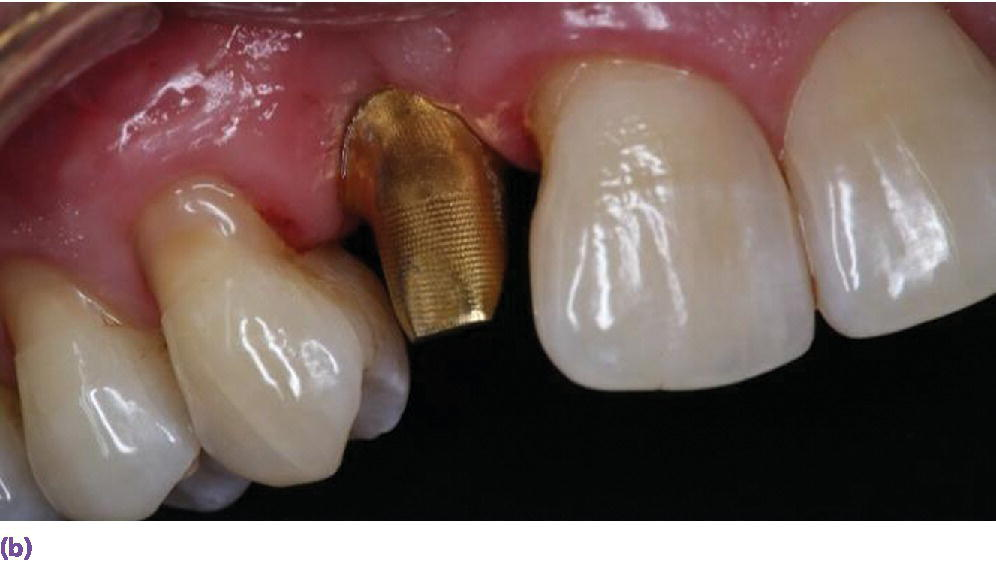 Photo displaying gold hue abutment in place.