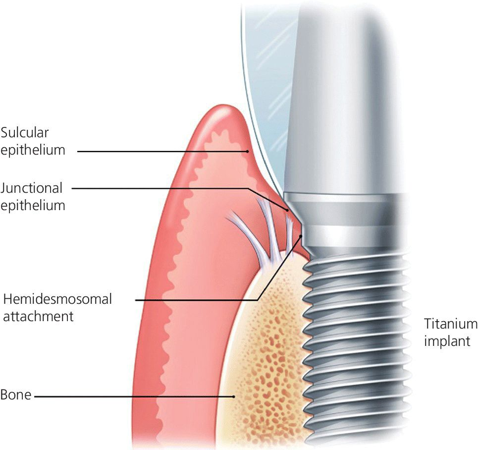 Illustration of biological attachment to a dental implant with lines pointed to sulcular and junctinal epithelium,hemidesmosal attachment,etc.