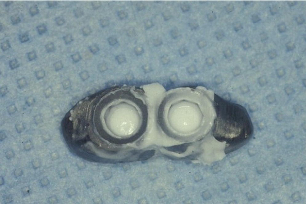 Photo depicting initial attempt at obtaining complete and passive seating of a splinted implant-supported restoration using silicone disclosing medium.