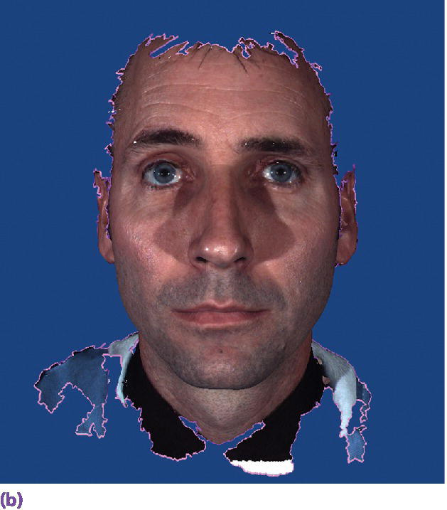 Photo displaying man's face in his extraoral 3D facial image.