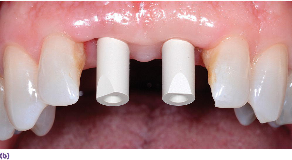 Photo displaying intraoral implant scanbodies for digital impressioning systems with two incisal bevels oriented to the facial for proper CAD software registration.