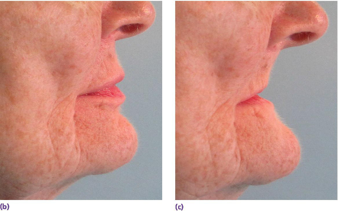Photos of patient's profile with (left) and without complete dentures (right) in place with obvious need for facial support by prosthesis flanges.