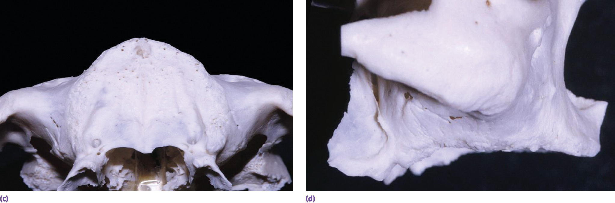 Photos displaying top view (left) and lateral view (right) edentulous dentate maxillae.