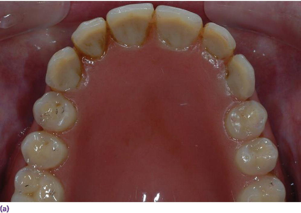 Photo depicting clinical situation of existing denture with adequate tooth position indicating mandible part.