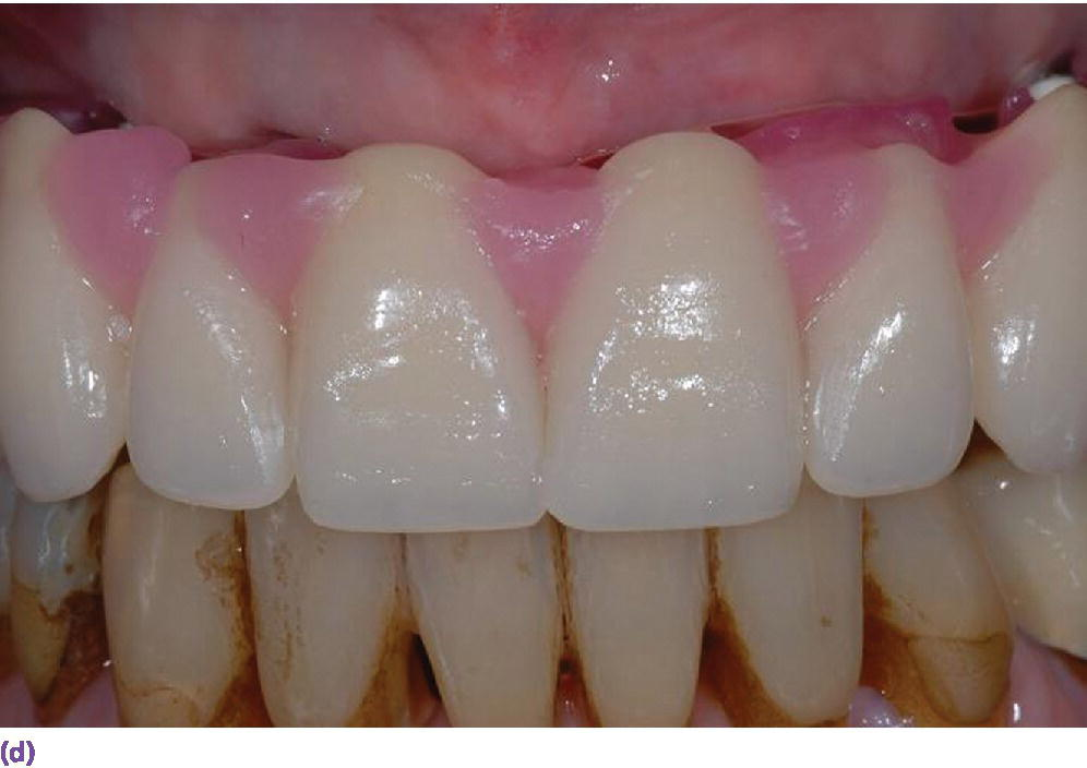 Photo displaying set-up made without buccal flange illustrating soft tissue support can only be provided by an implant overdenture (maxillary).