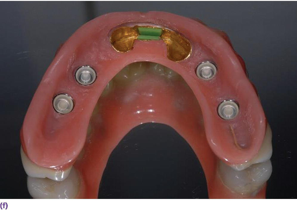 Photo displaying IOD retained at stud abutments (locators) and an anterior bar with an overcast.