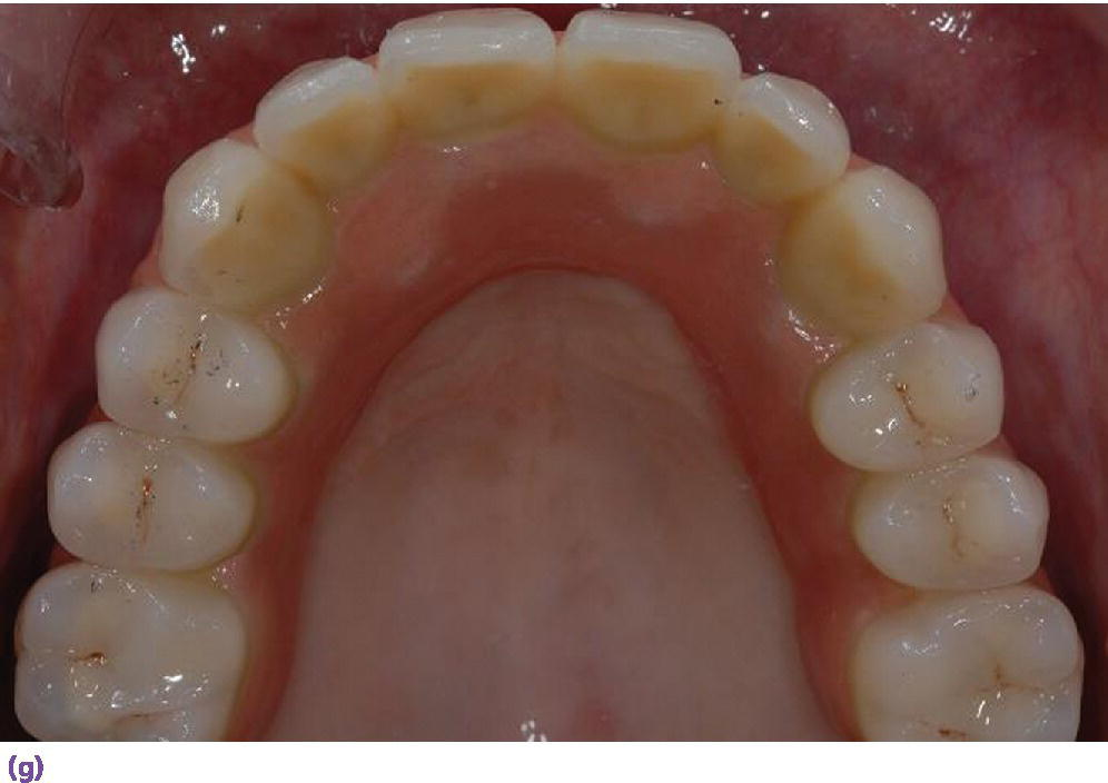 Photo displaying top view of denture inclinical with reduced palatal coverage and buccal flange extension.