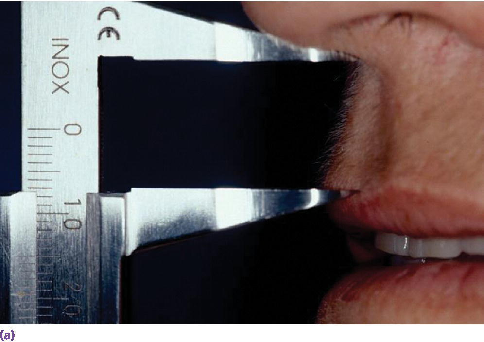 Photo of initial examination in a patient with a short lip line depicted by measuring from subnasal to philtrum with diagnostic set-up in place.