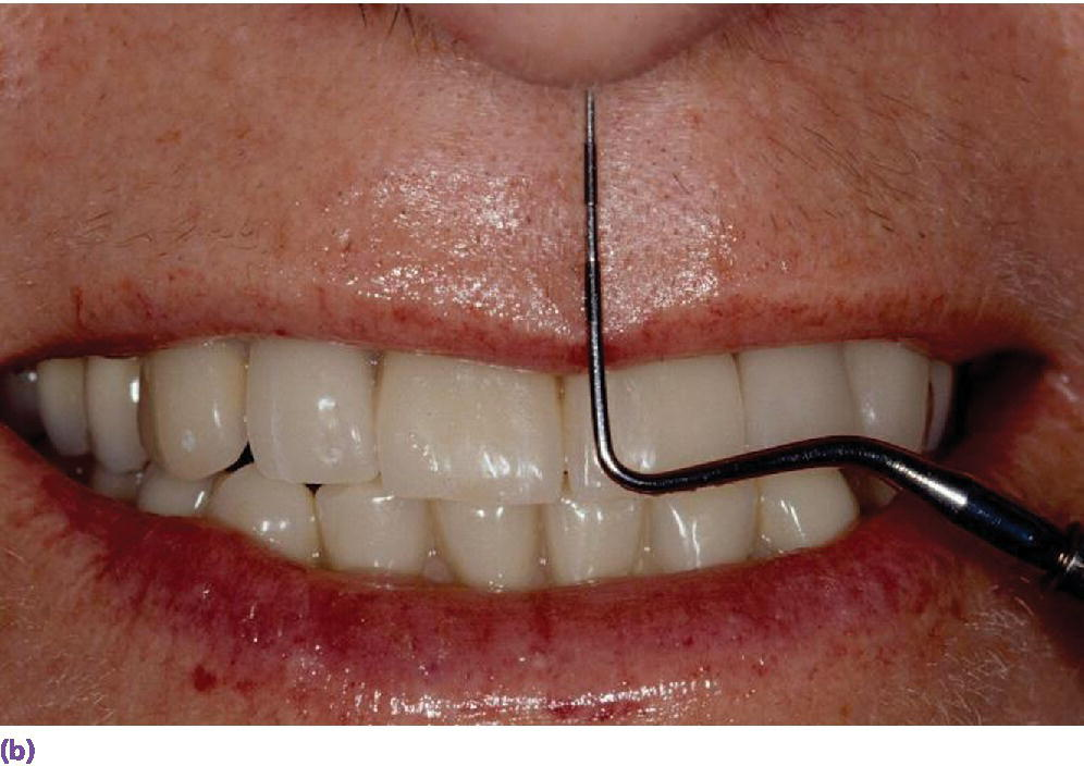 Photo displaying facial teeth with periodontal probe.