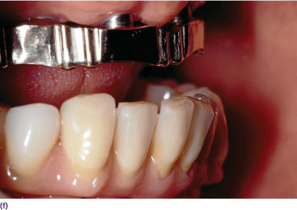 Photo displaying IOD retention with casted gold bar with Bredent Vario soft elements in maxillary part in lateral view.