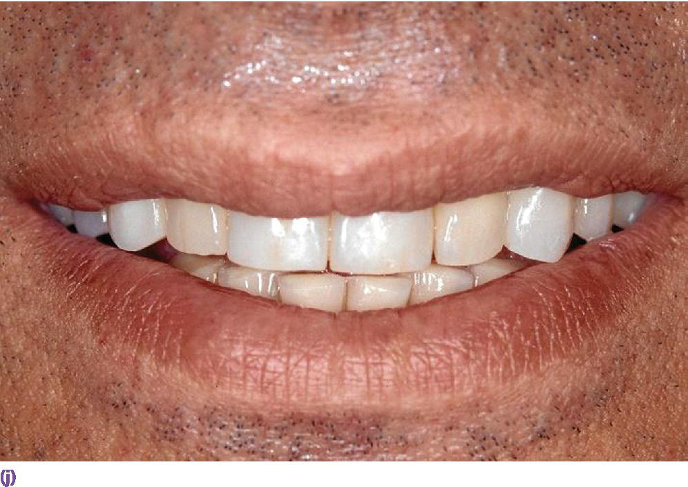 Photo displaying smile line presenting teeth in anterior view.
