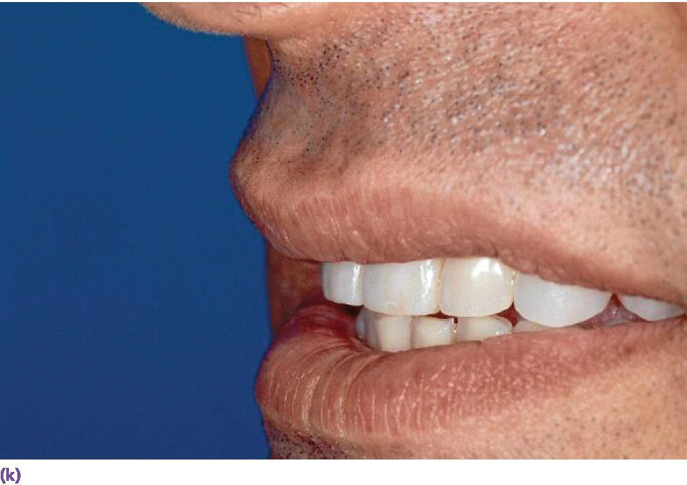 Photo displaying smile line  presenting teeth in side view.