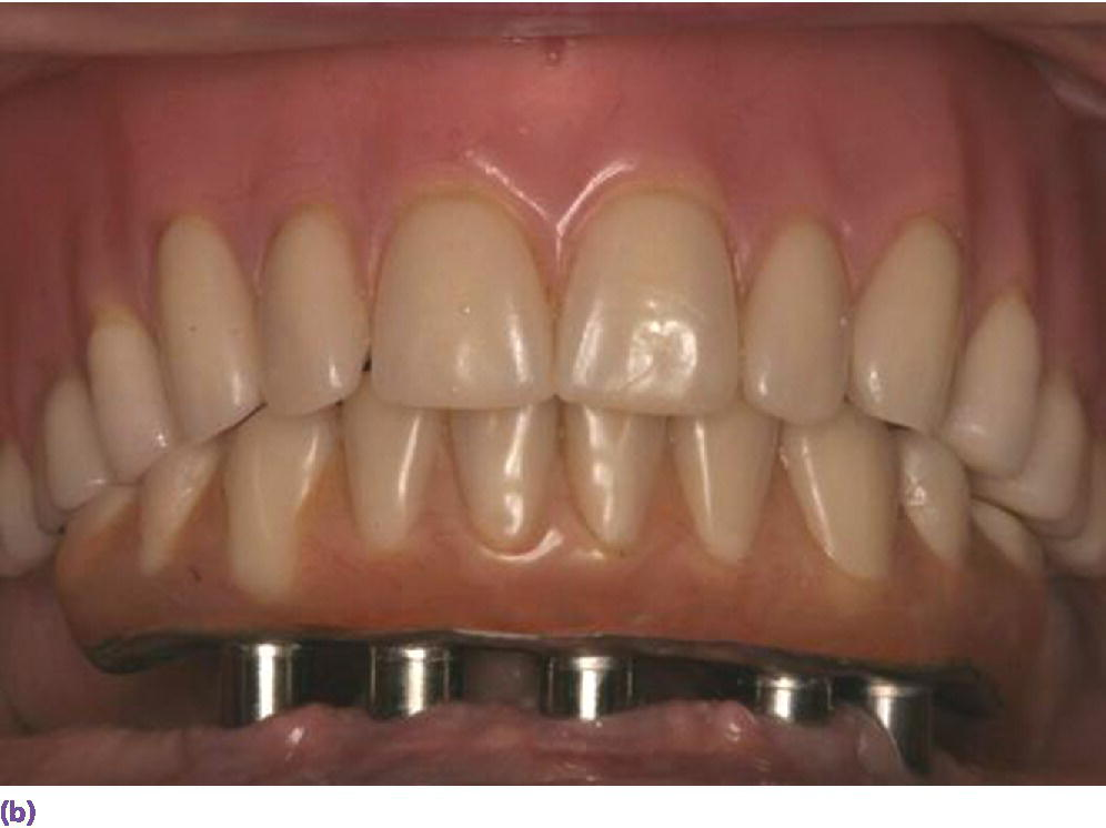 Photo displaying limited cantilever extension for implant fixed complete denture due to minimal AP span generated by vertically placed implants and adhering to formula (cantilever = 1.5AP span).