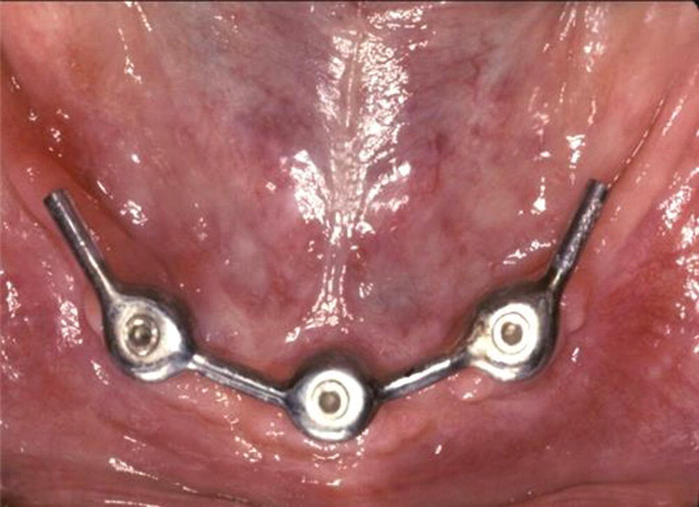 Photo displaying cantilever extension implant overdenture anchorage system designed to improve stability with class II patients.