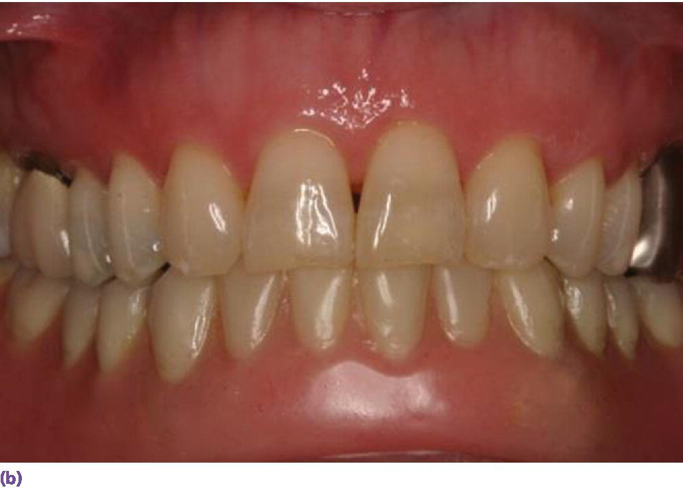Photo displaying frontal view of mandibular implant overdenture opposing natural dentition.