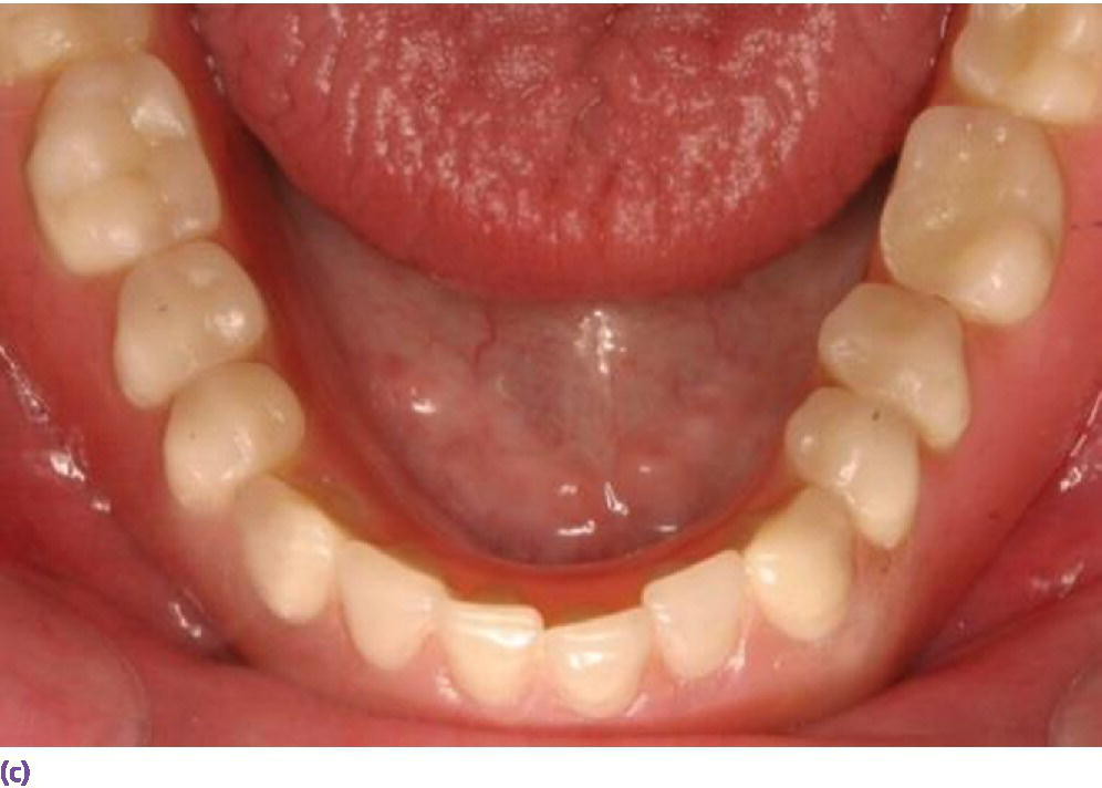 Photo displaying occlusal view of mandibular implant overdenture opposing natural dentition.