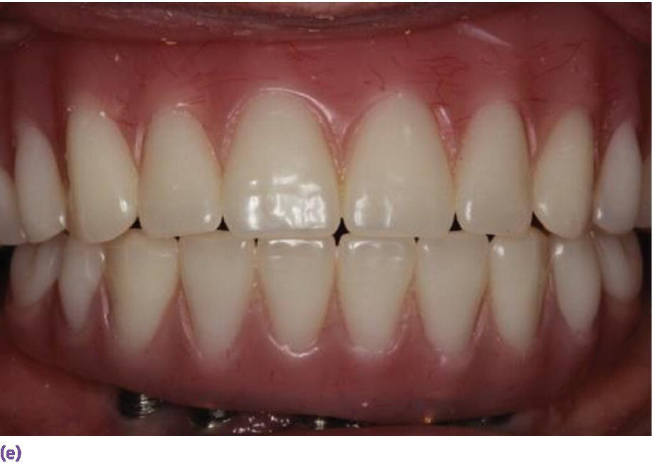 Photo displaying implant fixed complete denture requiring 12 mm of interarch space from crest of soft tissue to opposing dentition.