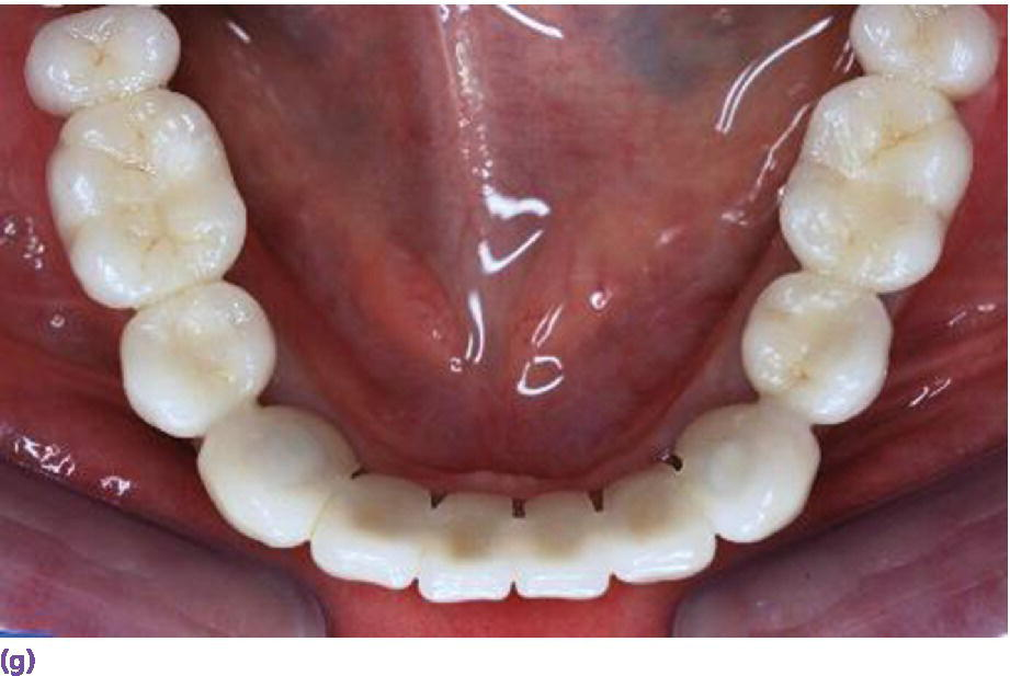 Photo displaying porcelain fused-to-metal implant reconstruction requiring 7 mm of interarch space.