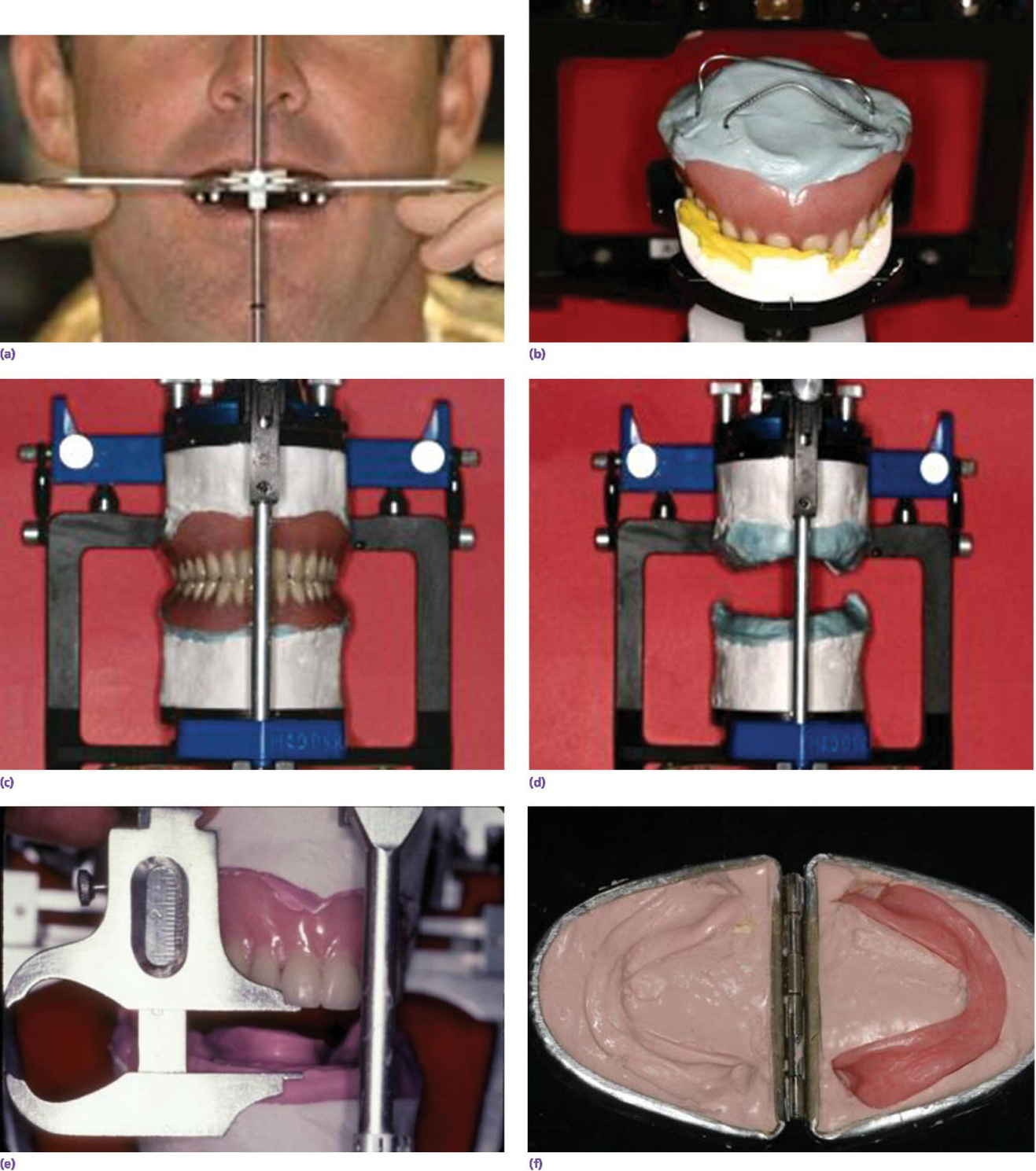 Photo displaying Kois Facial Analyzer in place to transfer, three‐dimensionally, the position of the maxillary denture to the articulator.