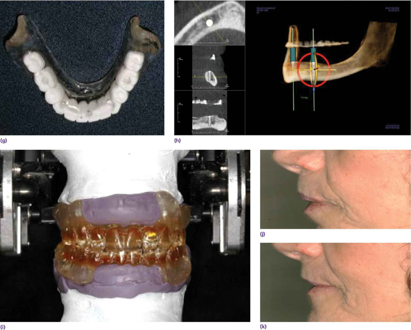 Photo displaying maxillary denture positioned on mounting stand via registration material with intaglio surface is filled with putty and paperclips for mounting stone.