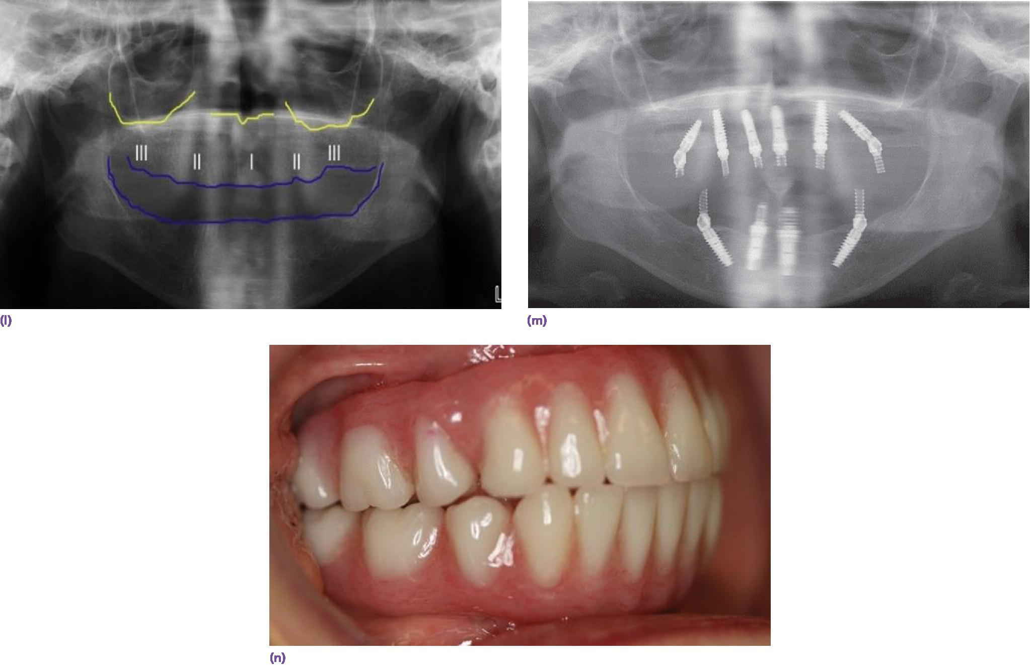 Photo displaying maxillary denture mounted on articular and mandibular denture is hand articulated to it with intaglio surface filled with putti and paperclips for mounting on articulator.