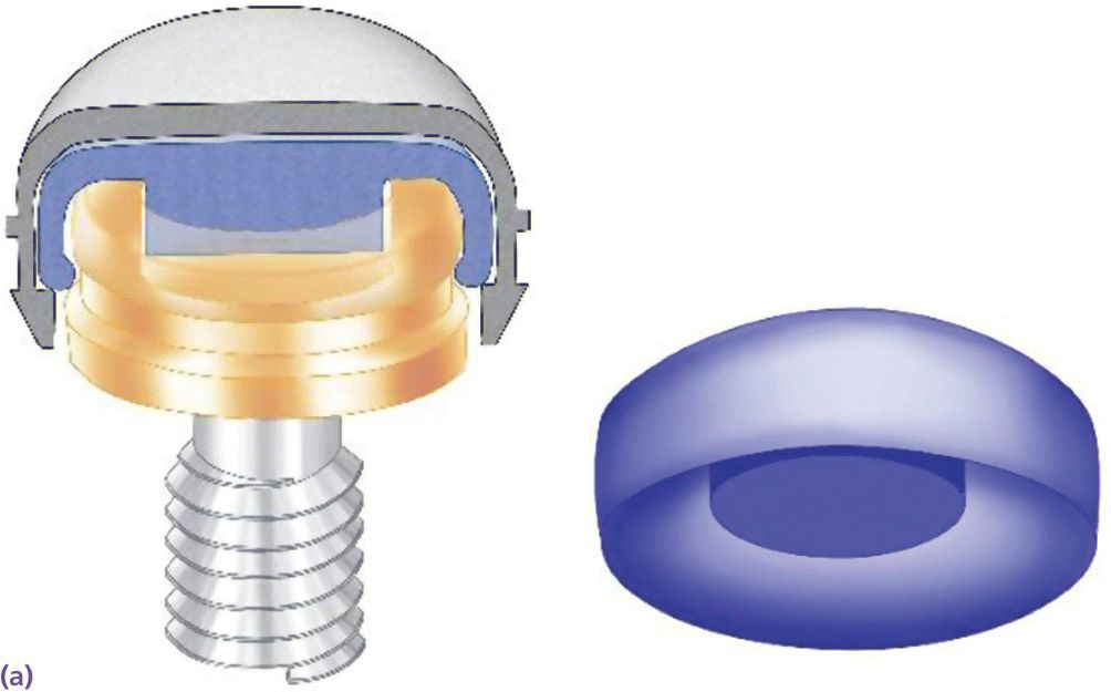 Schematic displaying nylon attachment inside metal housing engaging the internal well of Locator abutment.