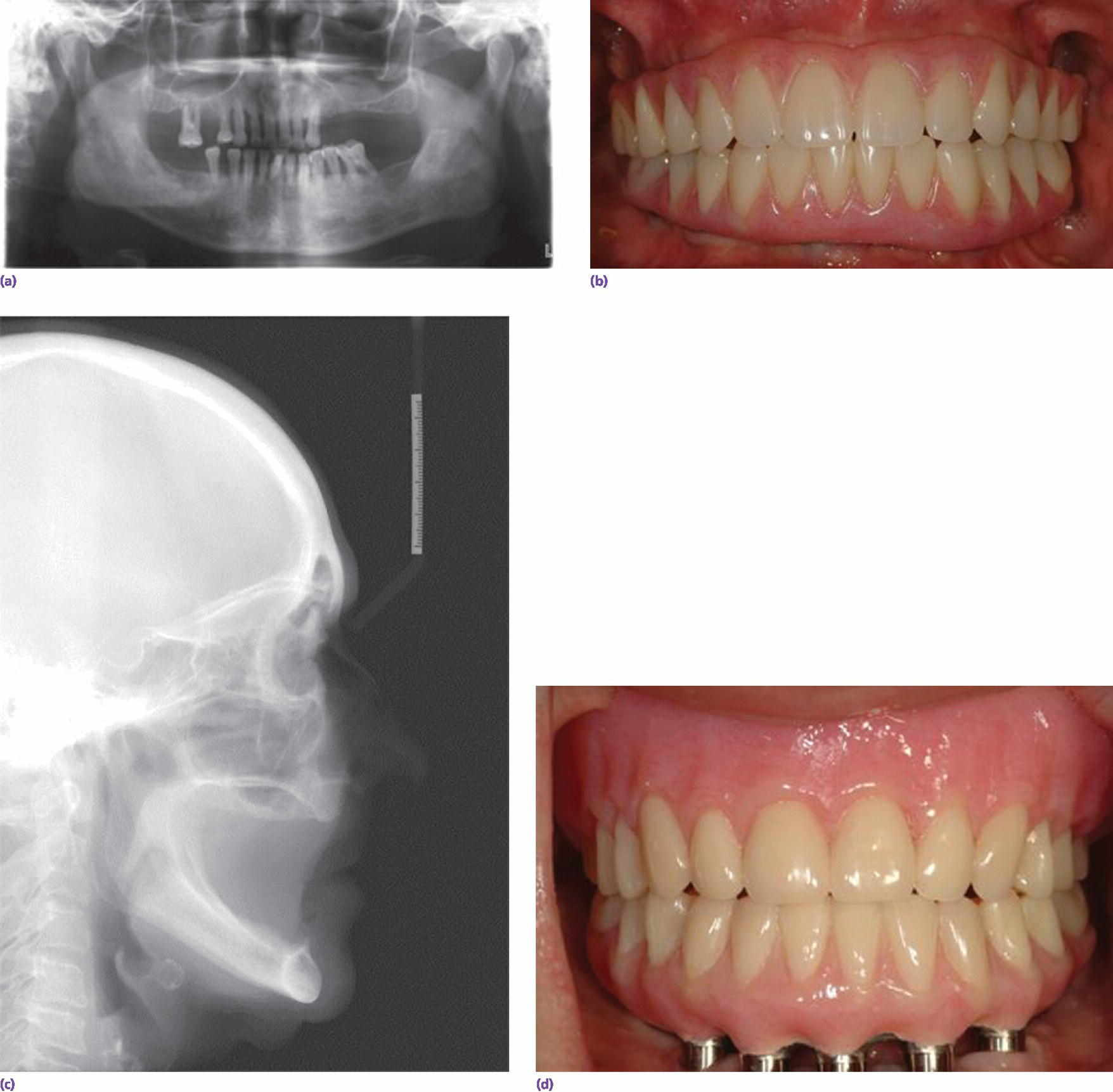 Radiographs of implant prosthetic reconstruction months (top left) and decades after tooth loss (bottom). Photos of implant fixed reconstruction (top right) and mandibular implant fixed reconstruction (bottom).