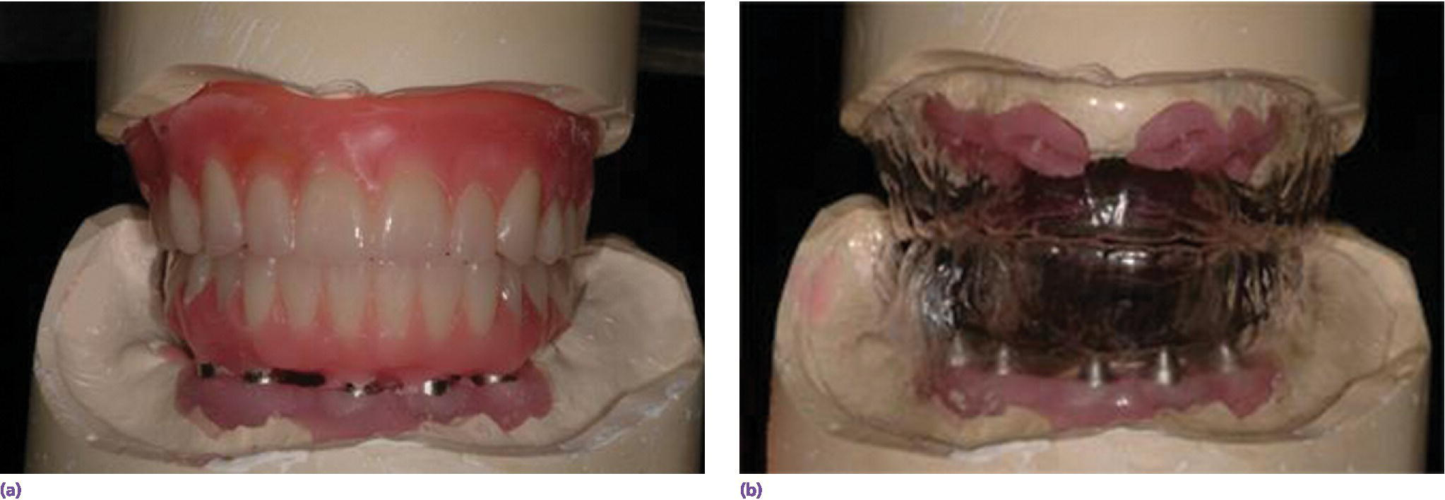 Photos of analog wax-up (top left), and wax-up permits spatial considerations for planning and fabricating maxillary and mandibular prostheses (top right).
