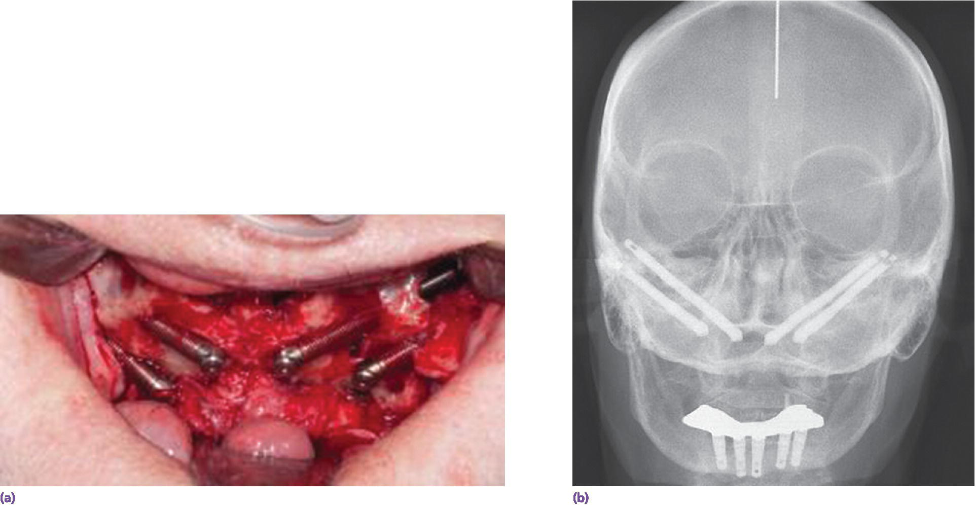 Photo of extended-length zygoma implants placed adjacent to atrophic maxilla (left). Radiograph of clinical view with precision-fit electrical-discharged machined metal-based overdenture (right).