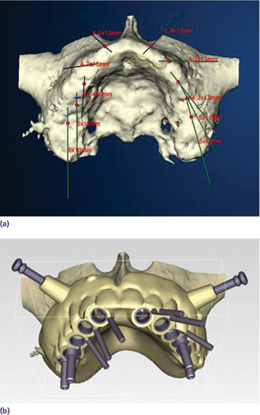 3D displaying patient with alveolar bone with CT scan for site selection and implant angulation for screw‐retained prosthesis(top) and surgical template fabrication supportive of prosthesis design(bottom).