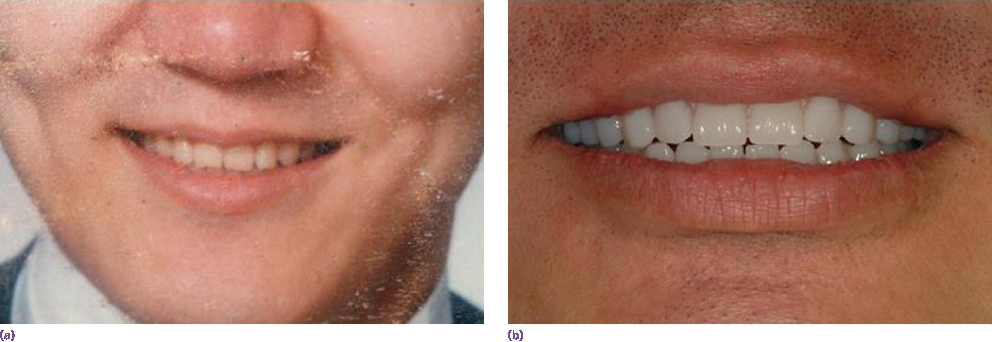 Photos displaying man smiling denoting high school graduation photo of patient with desired esthetics(left) and definitive prostheses with satisfactory lip support and achieved esthetics(right).